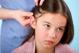 10 Ways to Kill Head Lice