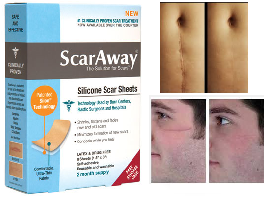 Imported quality Scar Removal Sheets in stan