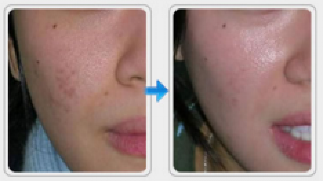 5 Best Acne Scar Removal Creams In Pakistan Online Shopping In