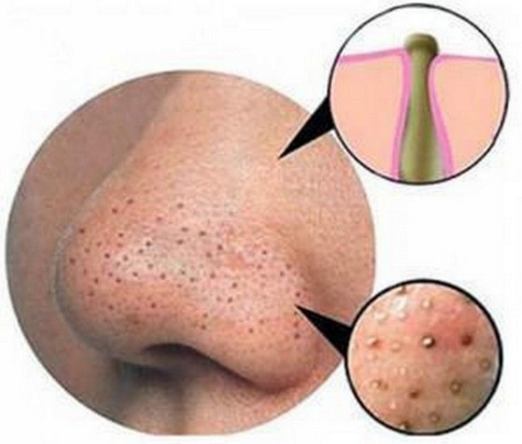 Best Product to remove blackhead
