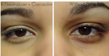 Neutralizer and Concealer