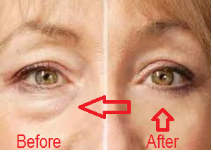 Eye Puffiness treatment