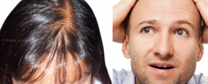 Hair Loss Treatment Product in Pakistan