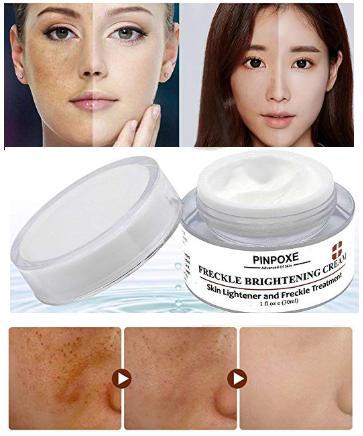 PINPOXE Freckle Brightening Cream