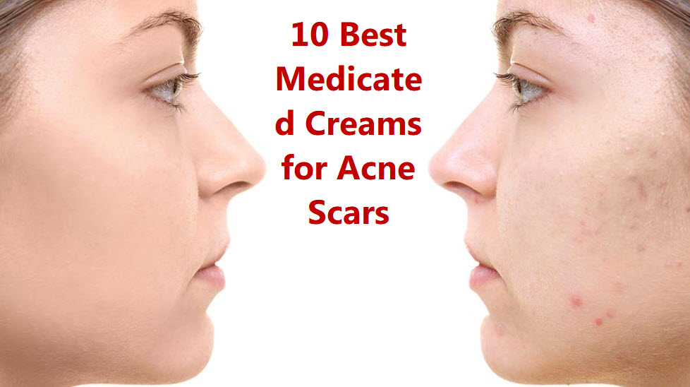 Best Medicated Creams For Acne Scars